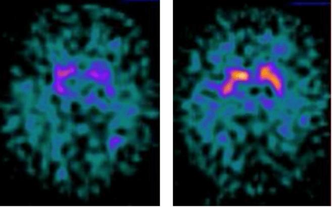 DaT-scan Lewy body dementie